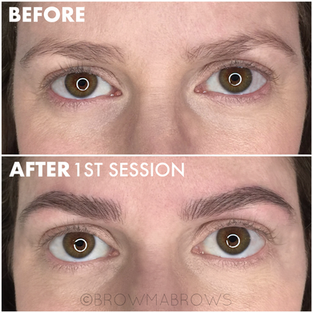 Frontal View of Microblading Results