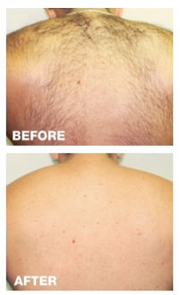 man's back laser hair removal