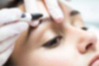 eyebrow hair removal electrolysis