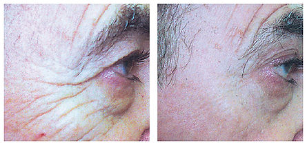 laser skin tightening crow's feet