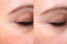 laser skin tightening crow's feet gentleyag