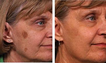 liver spot removal gentlemax laser
