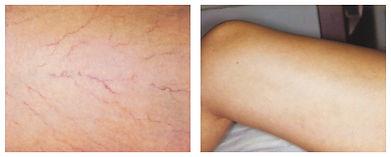 spider vein removal gentlemax laser