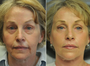 laser skin tightening before after