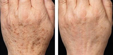 age spot removal candela gentlemax laser