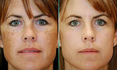 freckle removal candela gentlemax laser