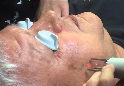 age spot liver spot removal  gentlemax laser