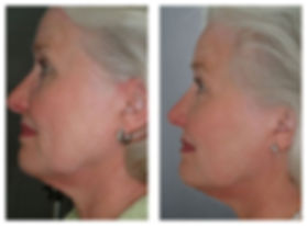 gentlemax skin tightening before after