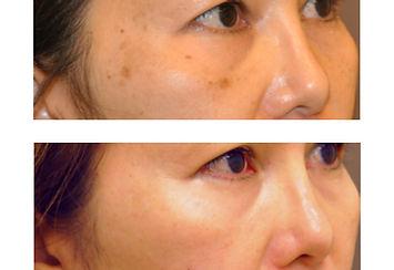 sunspot removal candela gentlemax laser