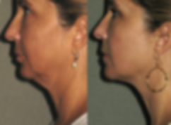 laser skin tightening before after gentleyag