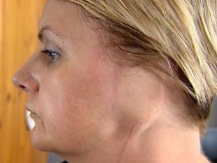 """Melanoma: """"Perdí una oreja por mi adicción al bronceado"""""""