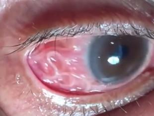 ¡Lo operaron para sacarle 20 gusanos de un ojo!