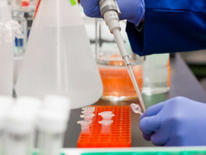Coronavirus: en ensayo clínico una decena de 119 proyectos de vacuna