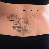 Rear View Of Laser Tattoo Removal On Wom