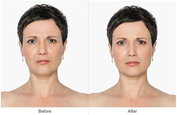 Woman with and without aging singes, double chin, worry wrinkles, nasolabial folds. Before