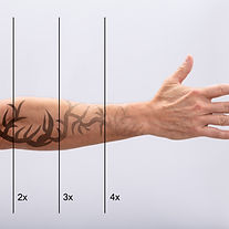 Laser Tattoo Removal On Man's Hand Again