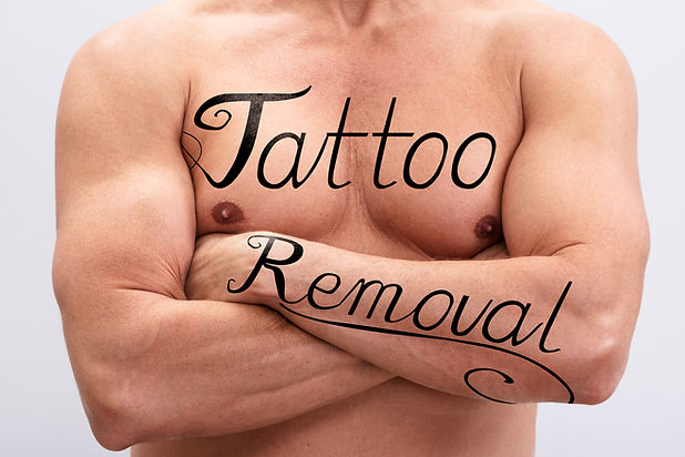Tattoo Removal Text On Shirtless Man's C