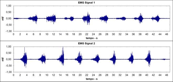Tracciato elettromiografico grezzo