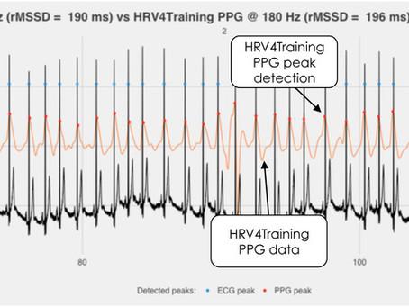 Variabilità della Frequenza Cardiaca: le basi