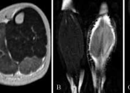 Rabdomiolisi e Sindrome Compartimentale: utilizzo delle tecniche di imaging