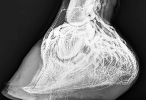 What We Know and What We're Learning about Laminitis