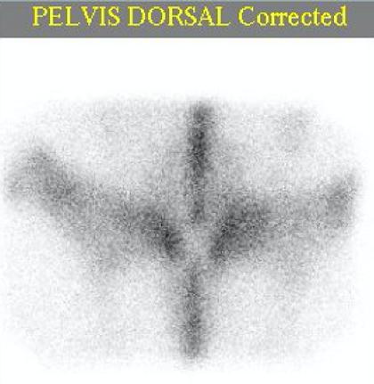 Pelvis Dorsal.png