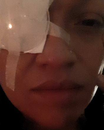 Eye Surgery Recovery