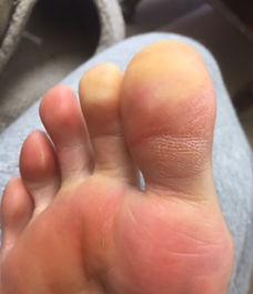 me foot.jpeg