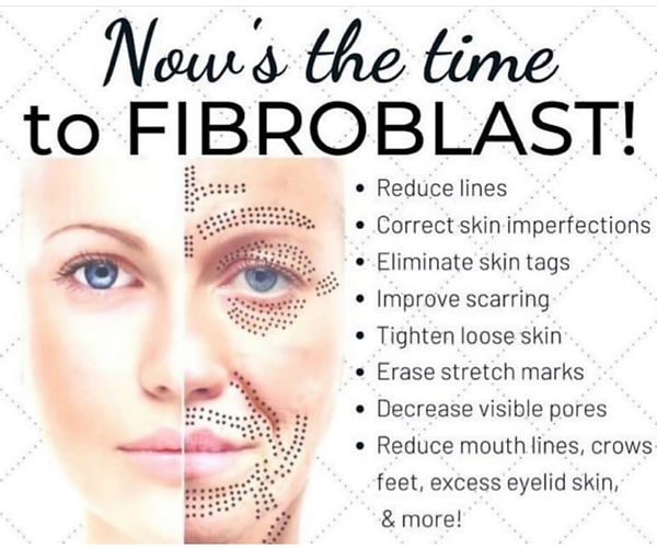 fibroblast.jpeg