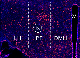 IHC orexin.PNG