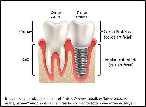 Implante Dentario em Osasco - Implante Dentario Osasco - Implante Dente em Osasco - Implante Dental em Osasco - Dentista Implante em Osasco - Implantodontia em Osasco - Implantodontista em Osasco - Implantar Dente em Osasco - Implante Carga Imediata em Osasco - Implante Dental Osasco - Implante Dente Osasco - Especialista Implante Osasco - Dentista Implante Osasco - Implantodontia Osasco - Implantodontista Osasco - Implantar Dente Osasco - Implante Carga Imediata Osasco - Implante Dental Osasco Preco - Implante Dentario Osasco Preco - Implante Dente Osasco Preco - Implantar Dente Osasco Preco - Implante Dental Osasco custo - Implante Dentario Osasco custo - Implante Dente Osasco custo - Implantar Dente Osasco custo - Implante Dental Osasco valor - Implante Dentario Osasco valor - Implante Dente Osasco valor - Implantar Dente Osasco valor