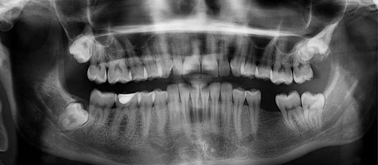 Arrancar dente em Osasco - Arrancar dente Osasco - Tirar dente em Osasco - Tirar dente Osasco - Extrair dente em Osasco - Extrair dente Osasco - Exodontia em Osasco - Exodontia dental em Osasco - Exodontia dentaria em Osasco - Extraçao em Osasco - Extraçao dental em Osasco - Extraçao dentaria em Osasco - Arrancar dente preço - extrair dente preço - Arrancar dente valor - extrair dente valor - exodontia dental preço - exodontia dental valor