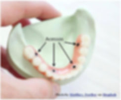 Protese Protocolo em Osasco - Protese Parafusada em Osasco - Dentadura Parafusada em Osasco - Sobredentadura em Osasco - Dentadura Fixa em Osasco - Protese sobre Implantes em Osasco - Dentadura Protocolo em Osasco - Dentadura sobre Implantes em Osasco - Overdenture em Osasco - Protese Protocolo Osasco - Protese Parafusada Osasco - Dentadura Parafusada Osasco - Sobredentadura Osasco - Dentadura Fixa Osasco - Protese sobre Implantes Osasco - Dentadura Protocolo Osasco - Dentadura sobre Implantes Osasco - Overdenture Osasco - Protese Protocolo Osasco Preco - Protese Parafusada Osasco Preco - Dentadura Parafusada Osasco Preco - Sobredentadura Osasco Preco - Protese sobre Implantes Osasco Preco - Especialista Protese Parafusada - Especialista Protese Protocolo - Especialista Overdenture