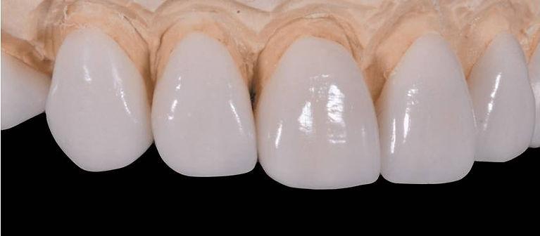 Especialista Lente de Contato Dental - Lente de Contato Dental em Osasco - Lentes de Contato Dental em Osasco - Lente de Contato Dente em Osasco - Lentes de Contato Dente em Osasco - Lente de Contato Dental Osasco - Lentes de Contato Dental Osasco - Lente de Contato Dente Osasco - Lentes de Contato Dente Osasco - Lente de Contato Ceramica Osasco - Lentes de Contato Porcelana Osasco - Lente de Contato Ceramica - Lentes de Contato Porcelana - Lente de Contato Ceramica Osasco Preco - Lentes de Contato Porcelana Osasco Preco - Lente de Contato Ceramica Preco - Lentes de Contato Porcelana Preco - Lente de Contato Dental Osasco Preco - Lentes de Contato Dental Osasco Preco - Lente de Contato Dente Osasco Preco - Lentes de Contato Dente Osasco Preco - Lente de Contato Dental Osasco Valor - Lentes de Contato Dental Osasco Valor - Lente de Contato Dente Osasco Valor - Lentes de Contato Dente Osasco Valor - Lente de Contato Dental Osasco Custo - Lente de Contato Dente Osasco Custo