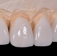 pabisodontologia - dentista em osasco - dentista osasco