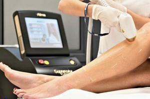 Mulher passando por um tratamento de depilação a laser nas pernas