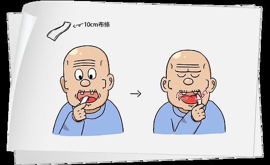 口腔操,舌頭提升訓練
