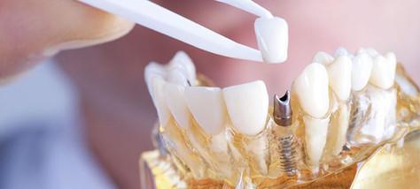 implante-dentario-aguas-claras.jpg