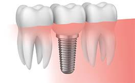 implante-VITAL.jpg