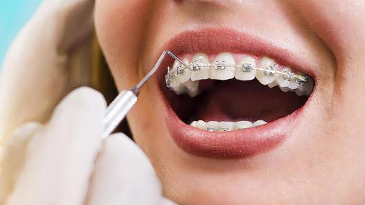 ortodontia em aguas claras