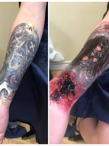 Arm Wounds & Burns