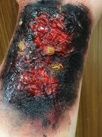 Burn with Blisters