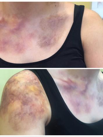 Bruised Chest