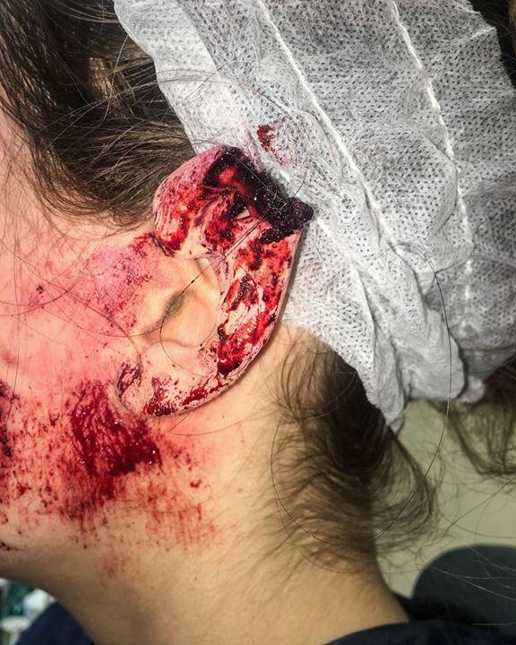 Ear Bite Prosthetic Application