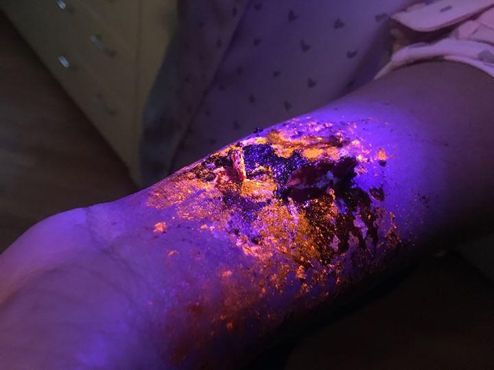 Blacklight Injury