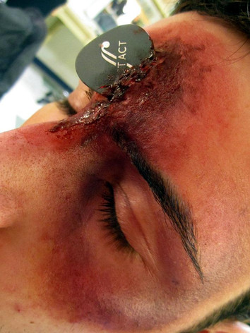 Guitarist Wax Injury