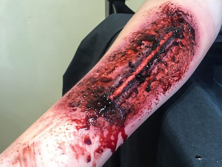 Prosthetic Injury Application