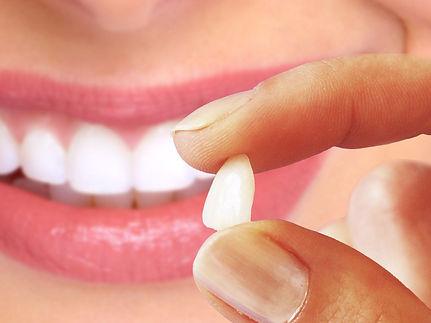 lente-de-contato-dental-1024x768.jpg
