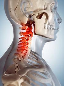 Exercise program for neck pain