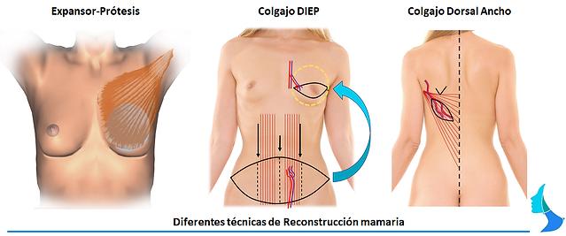 Reconstrucción de mama, estetica, sindrome de poland, amastia